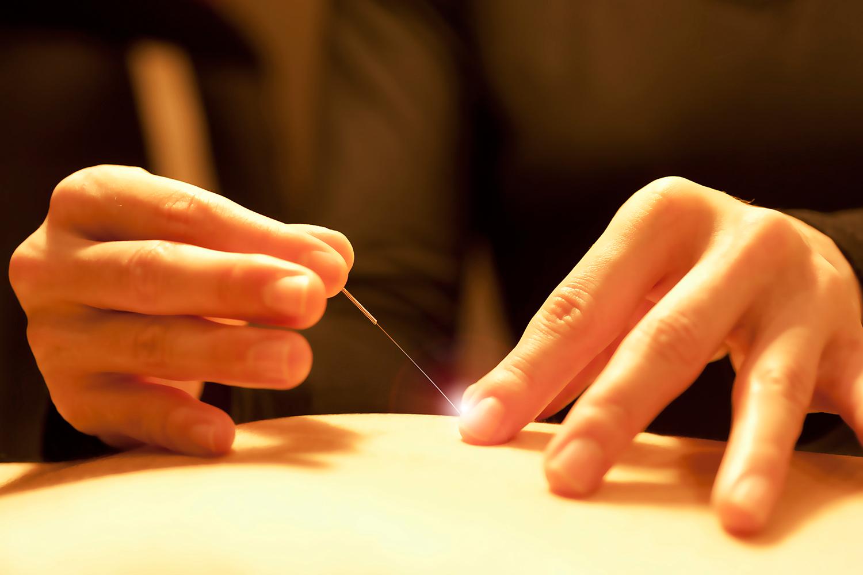 iDo Holistic Center | Japanese Acupuncture and Shiatsu ...