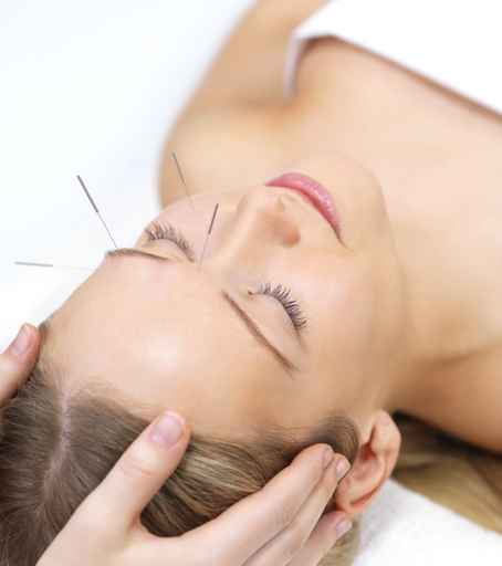 Try Acupuncture for Better Health - iDo Holistic Center